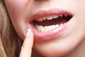 با روش خانگی آفت دهان را درمان کنید