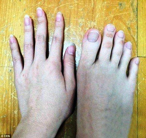 عکس های دختری که انگشتان پایش بسیار دراز است!