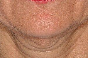 5 راه برای جوان سازی پوست زیر گردن