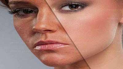 6 سم خطرناک که باعث پیری پوست می شوند!