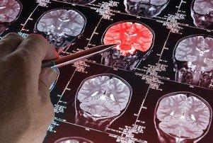 تاثیر کلسترول بر مغز
