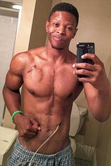 اندام ورزشکاری پسری که قلبش بیرون از بدنش است!