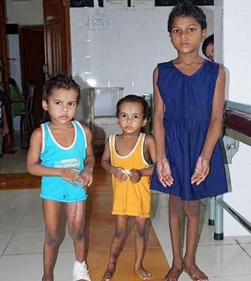 عکس های بیماری وحشتناک و عجیب 3 خواهر هندی!