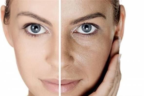تزریق گاز CO2 برای جوان سازی پوست