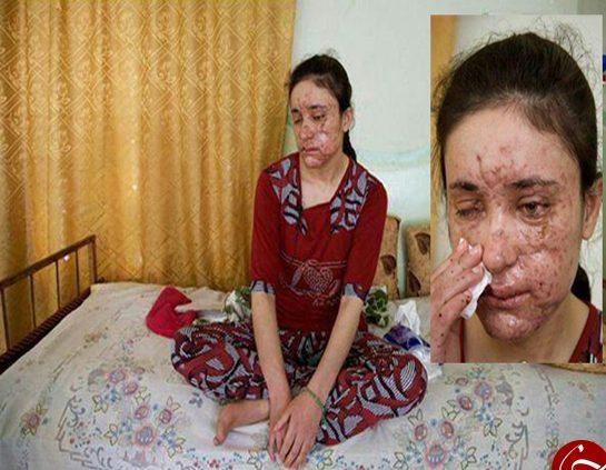 حرف های دختر 18 ساله فراری از تجاوزات جنسی داعشی ها! (عکس)