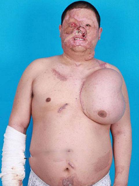 عکس 18+ از رشد صورت جدید در سینه این فرد!