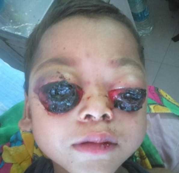 عکس های چشمان از حدقه بیرون آمده و خون آلود پسر بچه! 18+