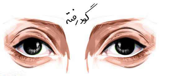 چشمان گود