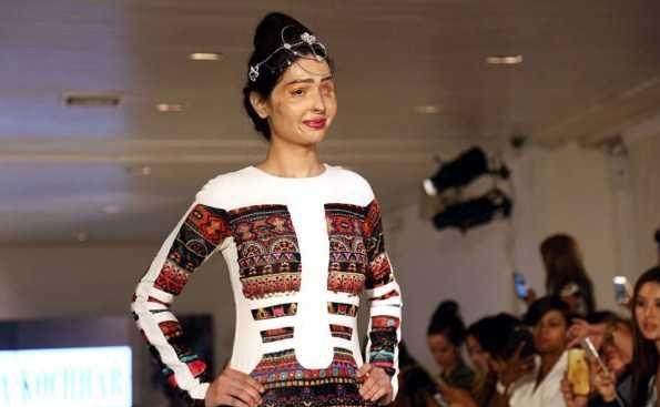 اسیدپاشی روی صورت دختر هندی
