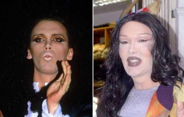جراحی زیبایی خواننده زن