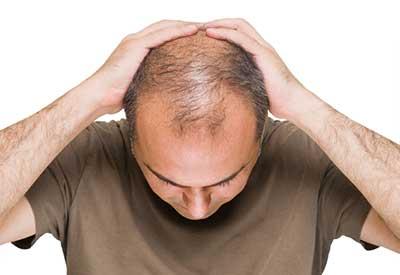 از ریزش مو خسته شده اید؟ این 14 نکته را برای جلوگیری از ریزش مو رعایت کنید