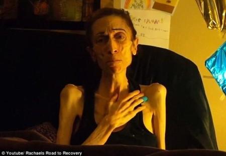 عکس های لاغرترین زن دنیا که پس از درمان بسیار جذاب و زیبا شد!