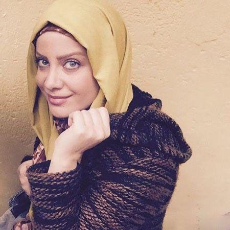 شراره رخام ژل های تزریق شده بر لبش را تخلیه کرد و چهره اش زیباتر شد! +عکس