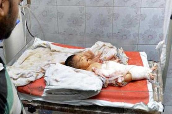 عکس های نوزاد بیچاره ای که توسط موش ها خورده شد و از بین رفت!