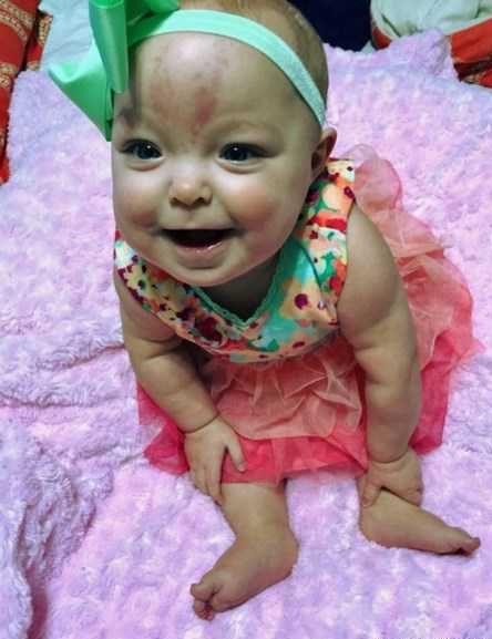 عکس دختر نوزاد با زبان بزرگ