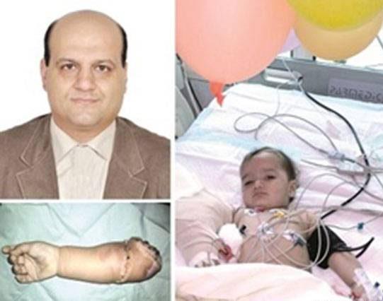 پیوند دست قطع شده نوزاد 13 ماهه در شیراز + عکس