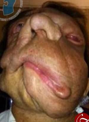 تصاویر 18+ وحشتناک از پیوند صورت بر روی یک زن لهستانی