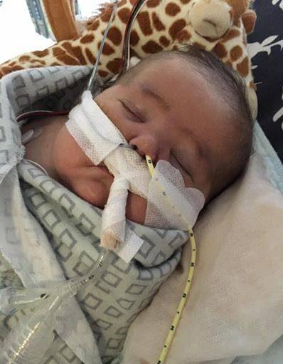 ماجرای پیوند قلب نوزاد 4 ماهه که جالب است
