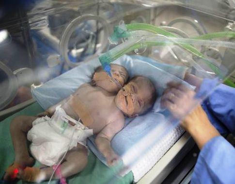 عکس نوزادی که دو سر و دو قلب دارد و هم پسر است و هم دختر!