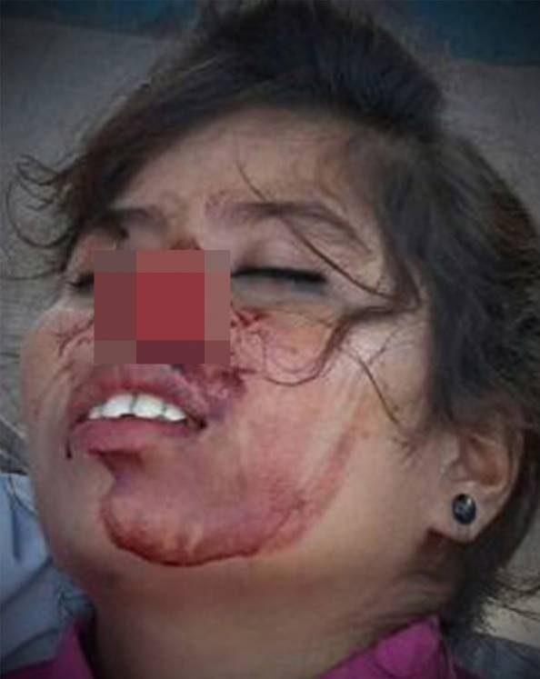 مرد دیوانه دماغ زنش را با گاز گرفتن از جا کند و فرار کرد + عکس زن مجروح