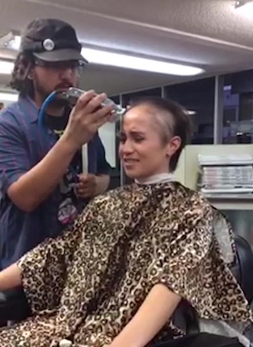 فشار روانی بر اثر تجاوز جنسی، باعث ریزش موهای دختر جوان شد! + عکس