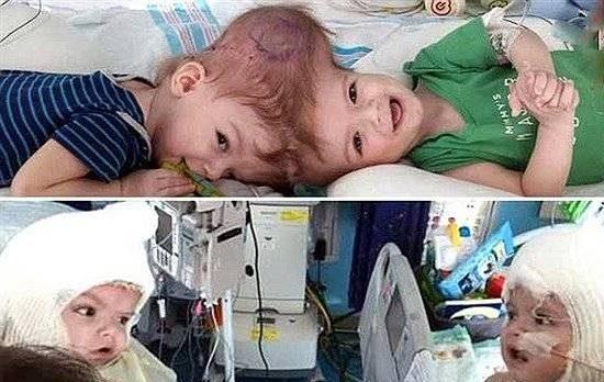 دیدار جالب دختران دوقلوی بهم چسبیده پس از جداسازی در بیمارستان + عکس