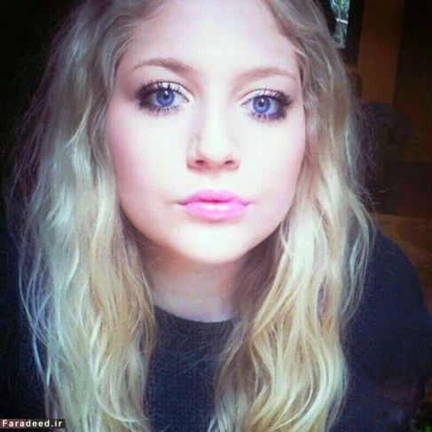 این دختر زیبا اختلال خود زشت انگاری دارد و تصور می کند خیلی زشت است!
