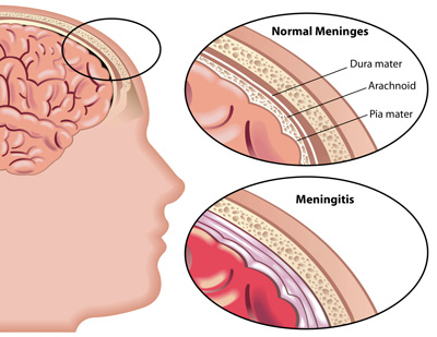 علائم و نشانه های بیماری مننژیت که باید بدانید