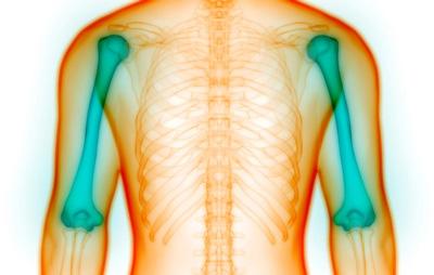 نشانه های پوکی استخوان | علائم مخفی پوک شدن استخوان ها