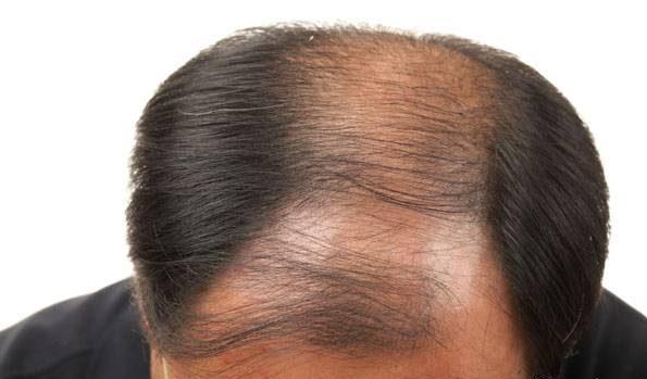 آیا دم اسبی بستن مو و گذاشتن کلاه باعث ریزش مو می شود؟