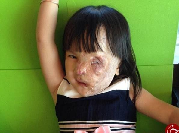 عکس دختری زیبا که تومور سرطانی نصف صورتش را خورد! + عکس