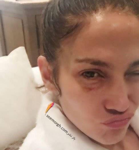 عکس جنجالی جنیفر لوپز با صورت کبود و کتک خورده! + عکس کبودی زیر چشم