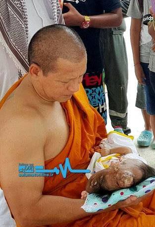 عکس های نوزاد دختری با ناهنجاری شدید و دردناک در اغوش یک راهبه (تصاویر 18+)