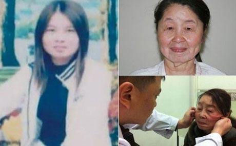 زن جوان چند روز پس از زایمان چهره اش پیر و وحشتناک شد! + عکس