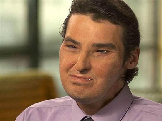 ریچارد نوریس (Richard Norris) نصف صورت خود را در اثر اصابت گلوله از دست داد اما زنده ماند.