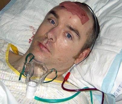 گروهبان آلیستَیر مک کینی (Alistair McKinney) از اصابت گلوله تک تیرانداز طالبان به سرش جان سالم به در برد.