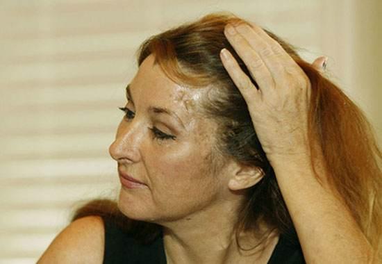تَمی سکستون (Tammy Sexton) بعد از آن که از ناحیه پیشانی مورد اصابت گلوله قرار گرفت برای خودش چایی درست کرد.