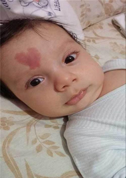 علامت و نشانه عشق بر روی پیشانی این نوزاد که جنجالی شد! + عکس