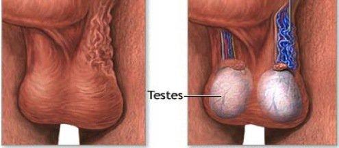 واریکوسل | دلیل و علایم واریکوسل چیست و چگونه درمان می شود؟