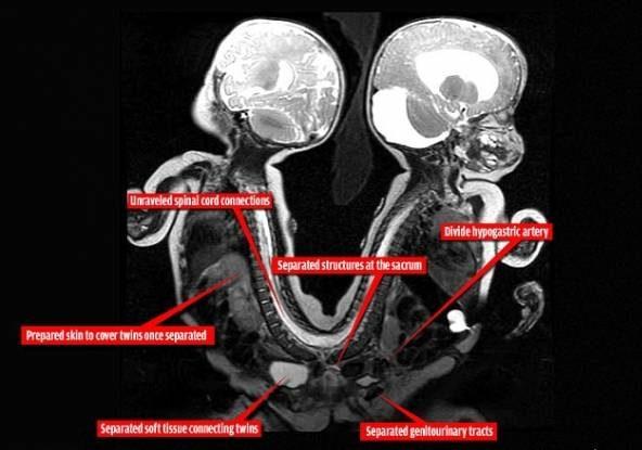 دوقلوهای دختر که از ناحیه باسن بهم چسبیده بودند جدا شدند! + تصاویر