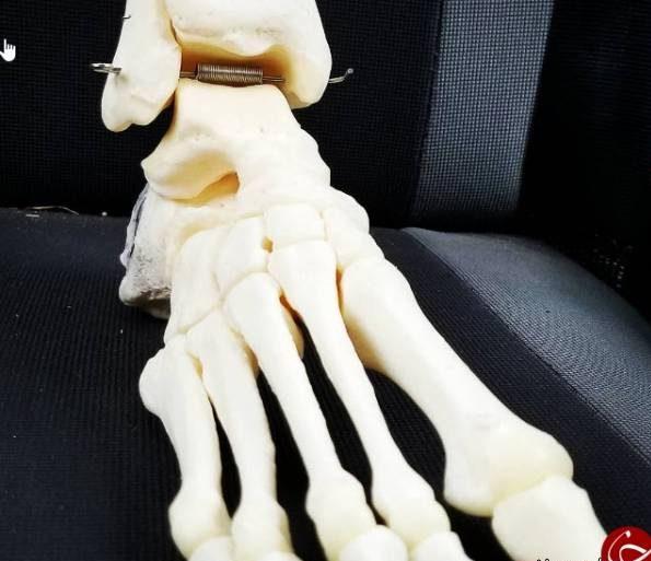 زن جوان تصاویر وحشتناک سلفی با پای قطع شده اش گرفت! + تصاویر ترسناک!