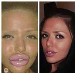 این دختر زیبا به دلیل عمل جراحی زیبایی چهره اش ترسناک شد!