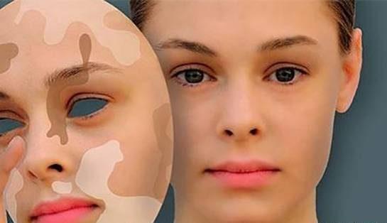 مشکلات و بیماری های پوستی شایع در بین ایرانیان