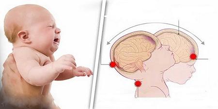 نوزاد را هرگز تکان شدید ندهید زیرا مغزش آسیب می بیند!