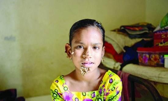 عکس های دختری که در حال تبدیل شدن به درخت است!