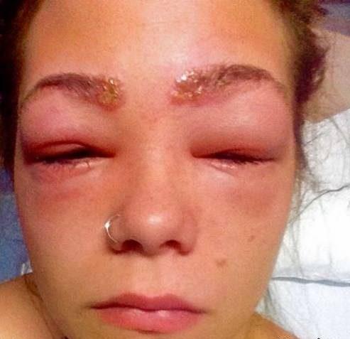 حساسیت به رنگ مو باعث چشمان دختر وحشتناک و متورم شود!