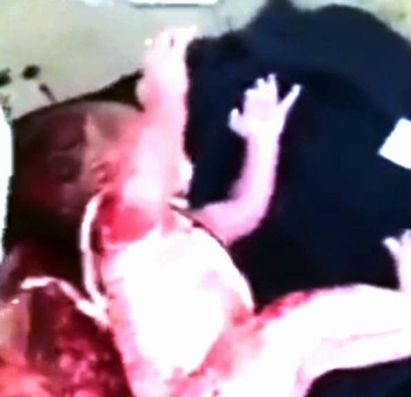 نوزاد تازه متولد شده در سطل زباله کنار خیابان پیدا شد! +عکس