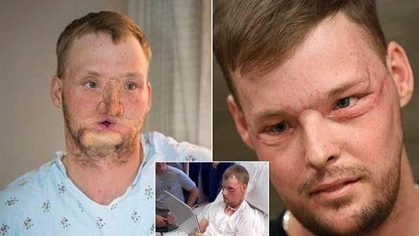 پیوند شگفت انگیز صورت به فردی که صورتش نابود شده بود!