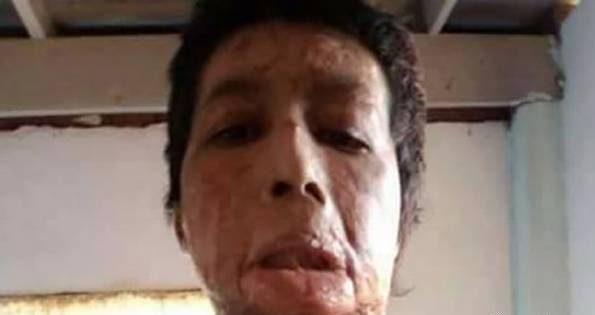 زن زیبا توسط شوهرش با نفت سوزانده شد! + تصاویر +16