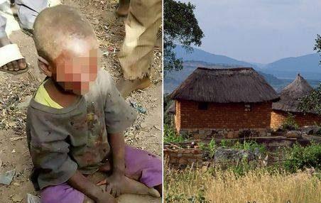 نامادری چشم های کودک 4 ساله را از حدقه درآورد ! + عکس وحشتناک
